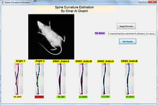 Spine Curvature Estimation
